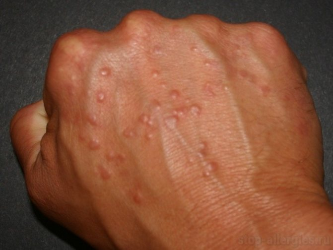 Аллергическая реакция на коже волдыри