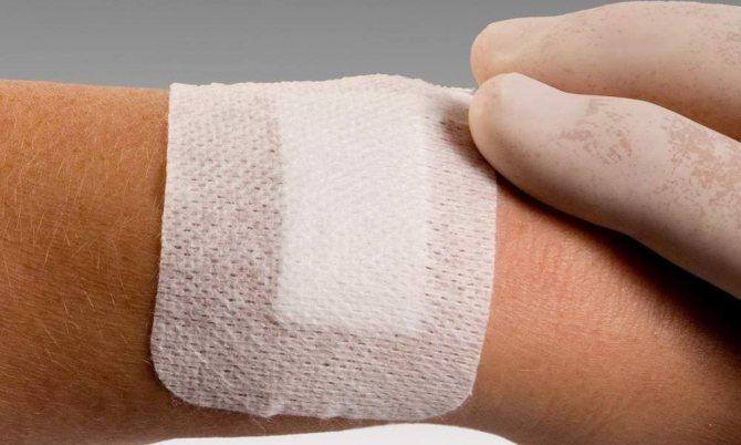 аллергическая реакция на лейкопластырь на запястье