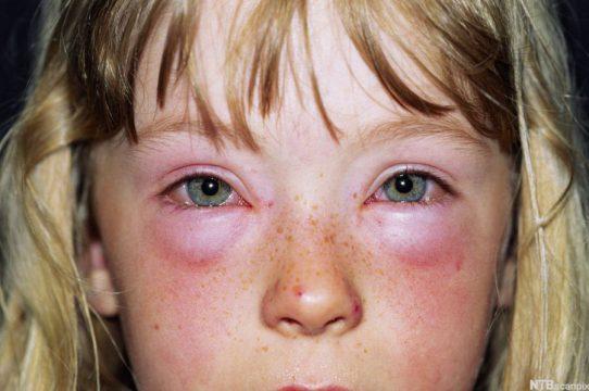 Аллергический отек глаз