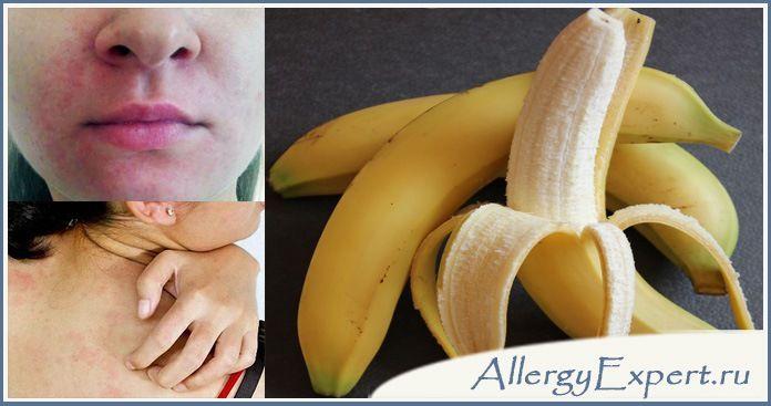 аллергия на бананы у ребенка симптомы