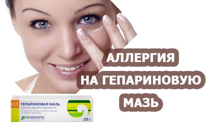Аллергия на гепариновую мазь