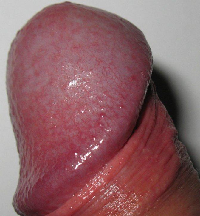 аллергия на головке полового члена