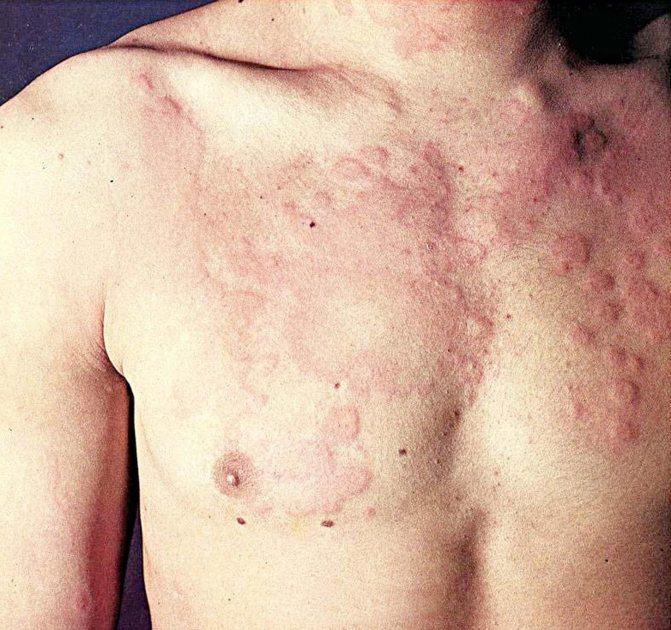 Аллергия на казеин у взрослого
