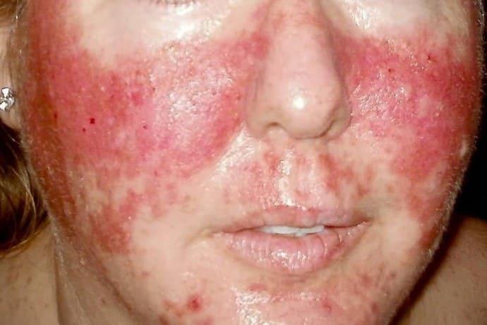 Аллергия на лице от алкоголя
