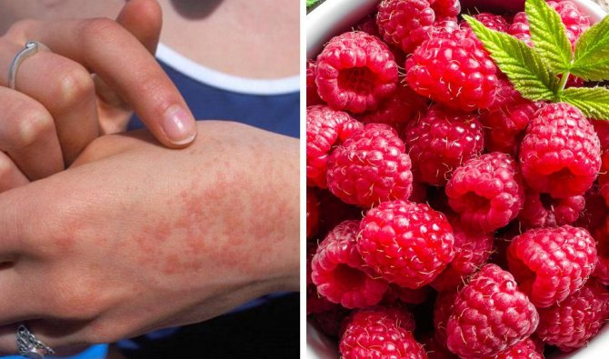 Аллергия на малину