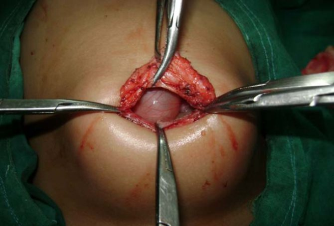 Аллергия на пластырь после операции