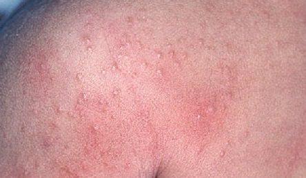 Аллергия на свет болезнь глаз — Аллергия