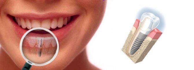 Аллергия на зубные импланты
