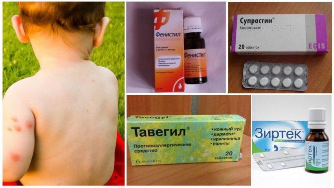 Антигистаминные препараты для внутреннего применения