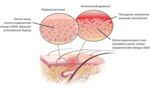 Чем отличается аллергический дерматит от атопического дерматита