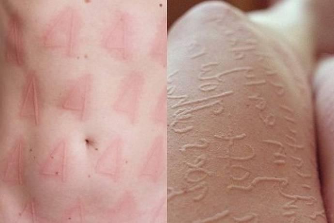 дермографическая аллергическая крапивница у детей и взрослых