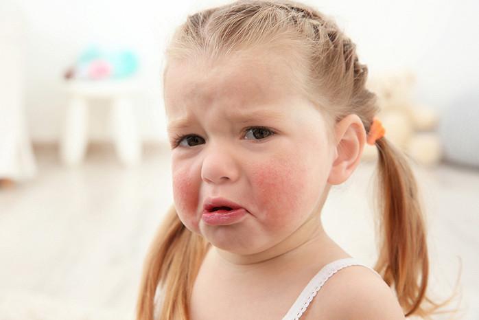 девочка с красными щеками