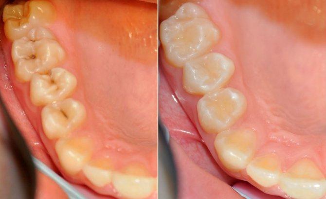 До и после установки пломбы: фото
