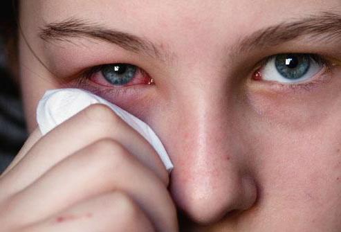 глазная мазь от воспаления век демазол