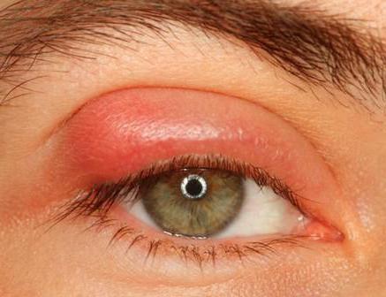 глазная мазь от воспаления век при аллергии