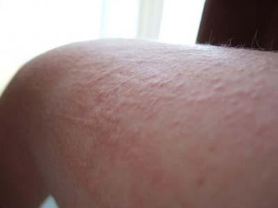Холодовая крапивница: симптомы, фото, лечение.