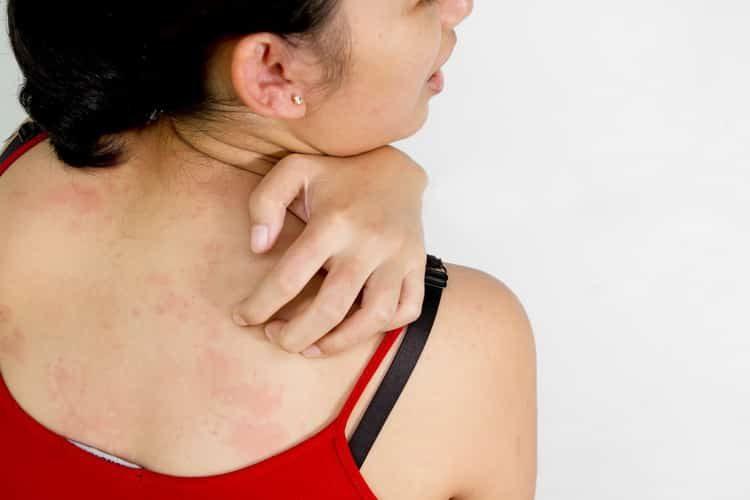 Как лечится аллергия на коже