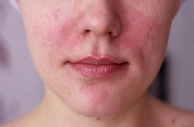 Как осознать от что аллергия
