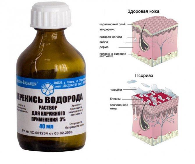 Как проводят лечение псориаза перекисью водорода? Можно ли пить внутрь?