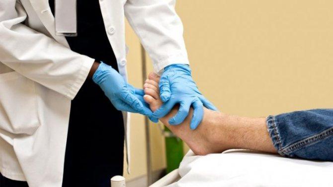 Как выглядит аллергия на ногах у взрослых фото симптомы и лечение