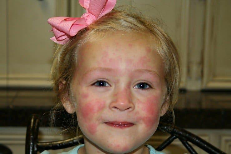 , как вылечить аллергию у ребенка на сладкое