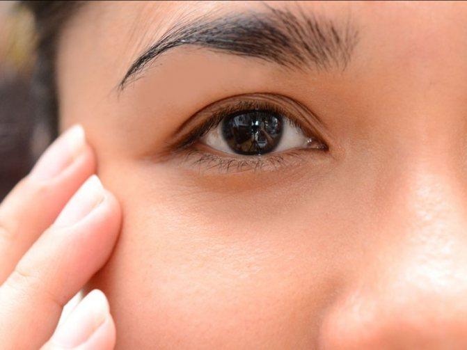 Как вылечить отек глаза