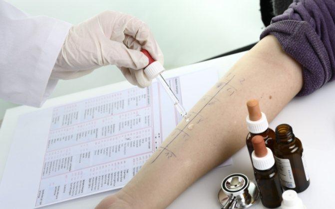 Кожные пробы на аллергены