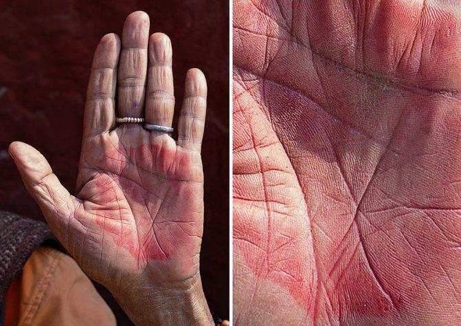 Красные ладони рук: причины возникновения и способы борьбы || Покраснение на ладонях у взрослого