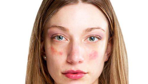 Красные шелушащиеся сухие пятна на коже
