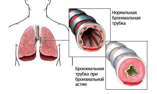 Легкие при бронхиальной астме
