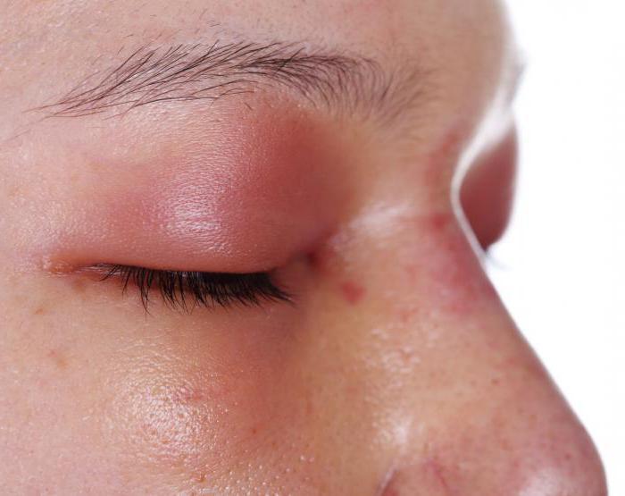 Наращивание ресниц аллергия на клей что делать