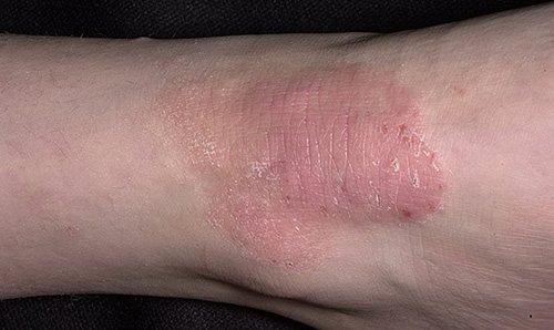 Ограниченный нейродермит - кожное заболевание, начинающееся с зуда. Впоследствии происходят изменения кожи - появление узелков и бляшек.
