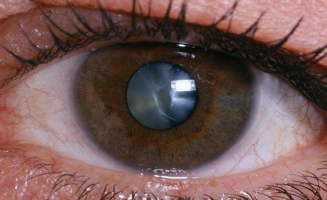 Осложнение катаракта