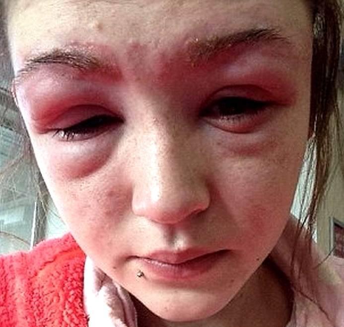 Осложнения при аллергии глаз на косметические препараты
