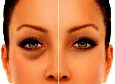 Отеки под глазами - причины и лечение!