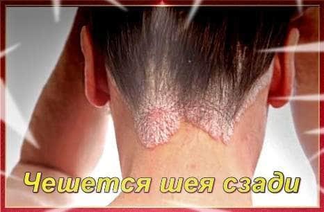 Почему чешется шея сзади