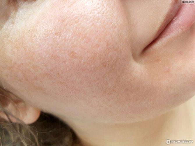Полисорб при аллергическом дерматите