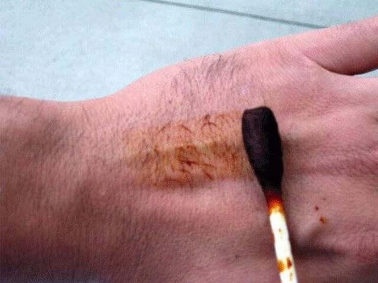 Пораженная кожа обрабатывается йодным раствором
