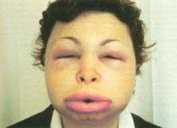 после аллергии болят суставы