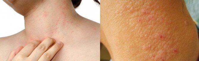 После гепариновой мази покраснела кожа что делать