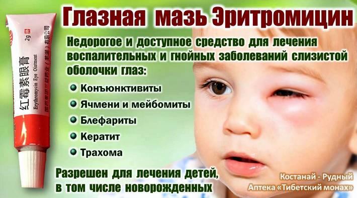 Противовоспалительные мази для глаз – все о зрении