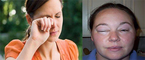 проявление аллергии на тополиный пух
