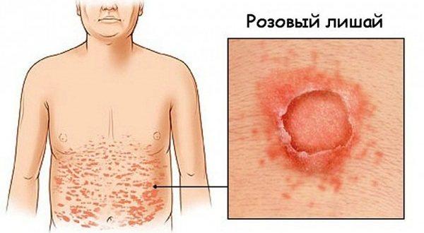Пятна на коже красного цвета не чешутся, с шелушением и без. Фото на ногах, руках, теле. Что это и как лечить