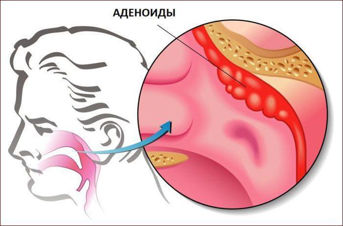 Симптомы аденоидита