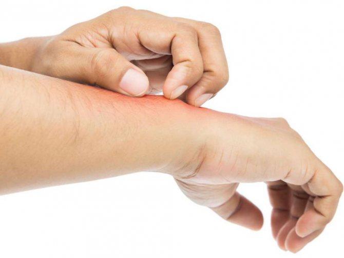 Симптомы аллергии на мясо
