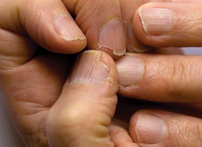 Симптомы грибка ногтей: ломкость и расслоение