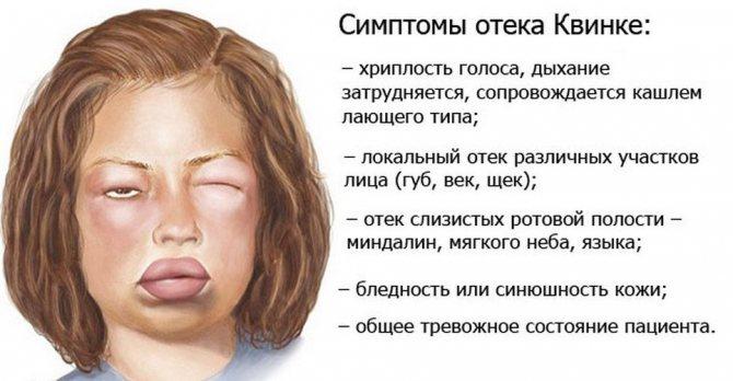 Симптомы отека Квинке