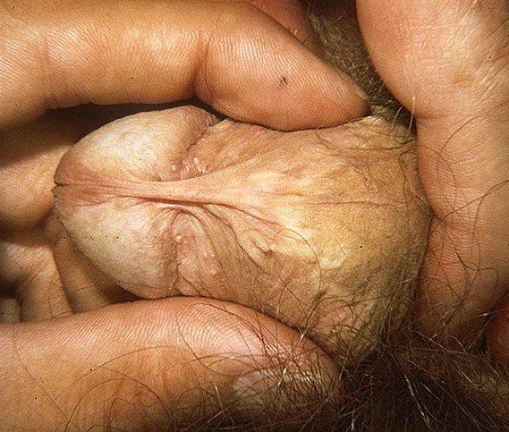склероатрофический лихен на члене