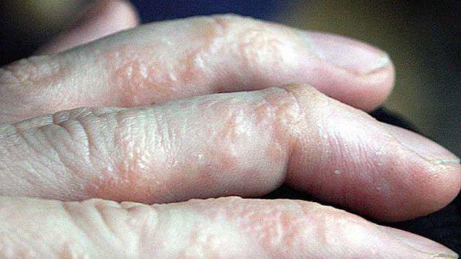сыпь на пальцах рук от хлора