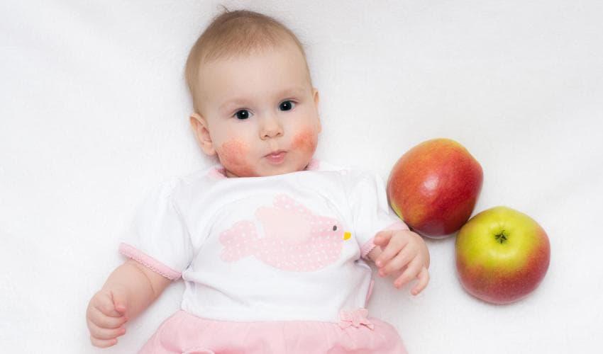 У ребёнка аллергия на красные яблоки